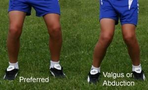 knee-valgus1